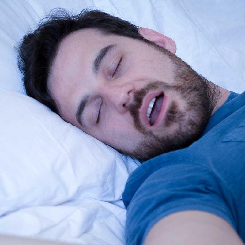 What Causes Obstructive Sleep Apnea?